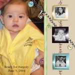 karsen's 1st surgery (thines)