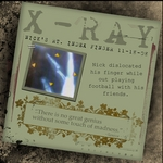 x-ray (annirana)